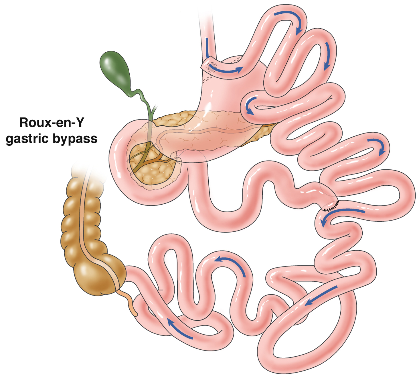 Causes Of Stomach Acid And acid reflux foaming  Belching
